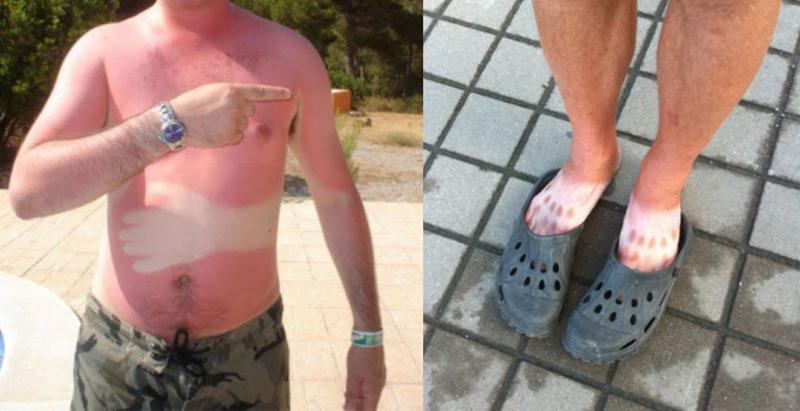 14 солнечных ожогов, которые настолько же смешные, насколько они болезненные (16фото)