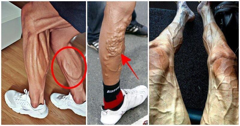 Обратная сторона спорта: как выглядят ноги велосипедистов (16фото)