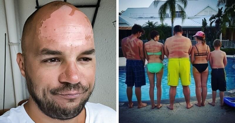 17 фотографий людей, которые перестарались с загаром (19фото)